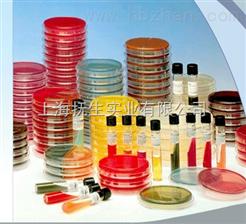 麻疹病毒抗體(IgG\IgM) 20T/40T